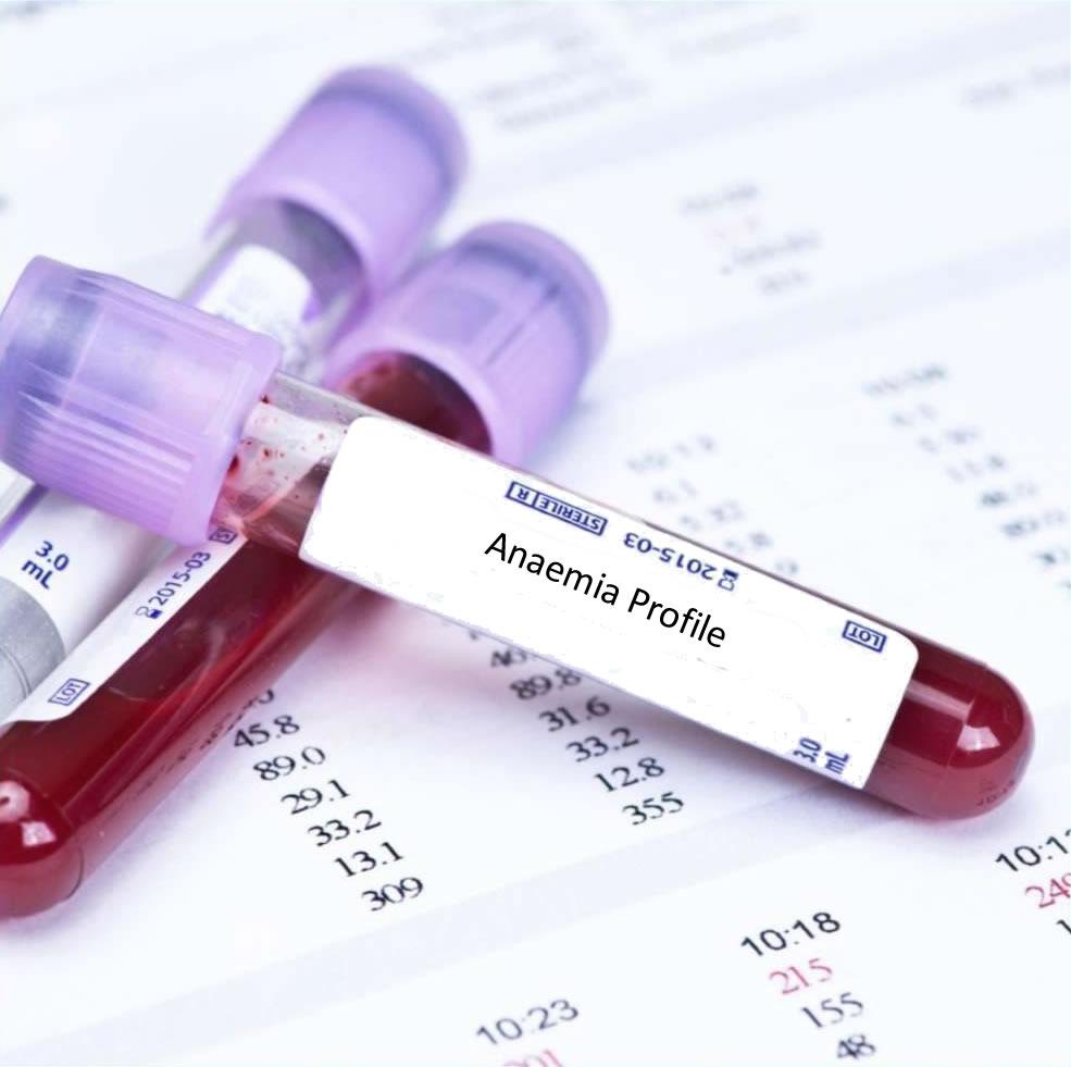 Anaemia2